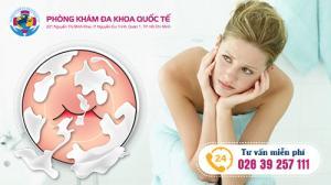 Phương pháp điều trị viêm ngứa âm đạo hiệu quả tại đa khoa quốc tế