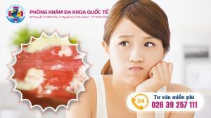 Điều trị viêm ngứa âm đạo bằng phương pháp gì hiệu quả