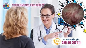 Các phương pháp điều trị viêm âm đạo mang lại hiệu quả