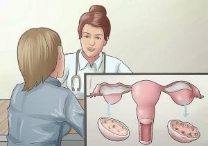 Đa nang buồng trứng có thực sự nguy hiểm không